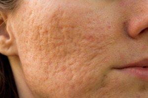 Skin bleaching solution