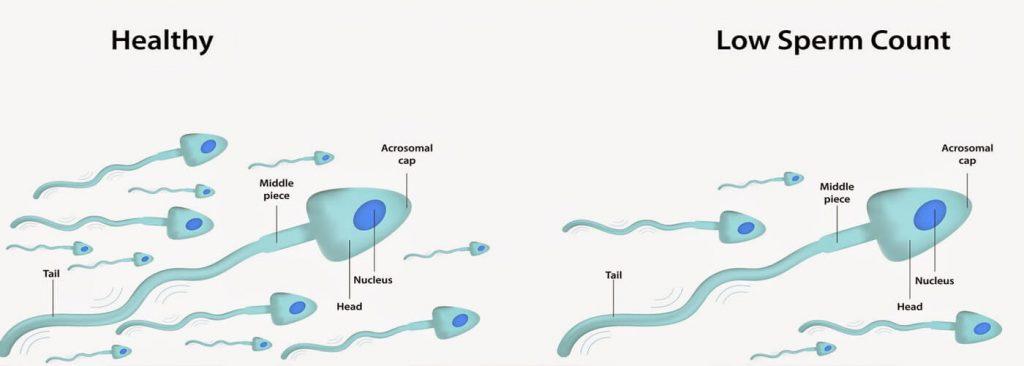 3b sperm count
